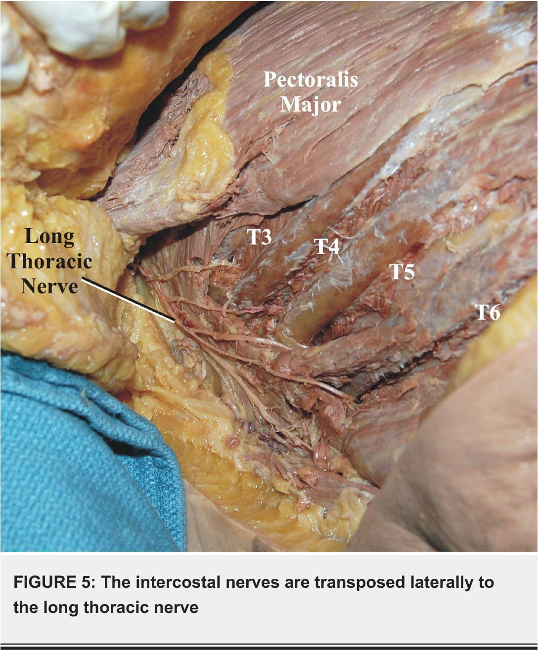 Intercostal Nerve to Long Thoracic Nerve Transfer for the Treatment ...