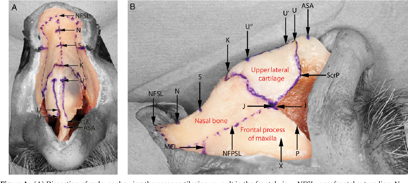The osseocartilaginous vault of the nose: anatomy and surgical ...
