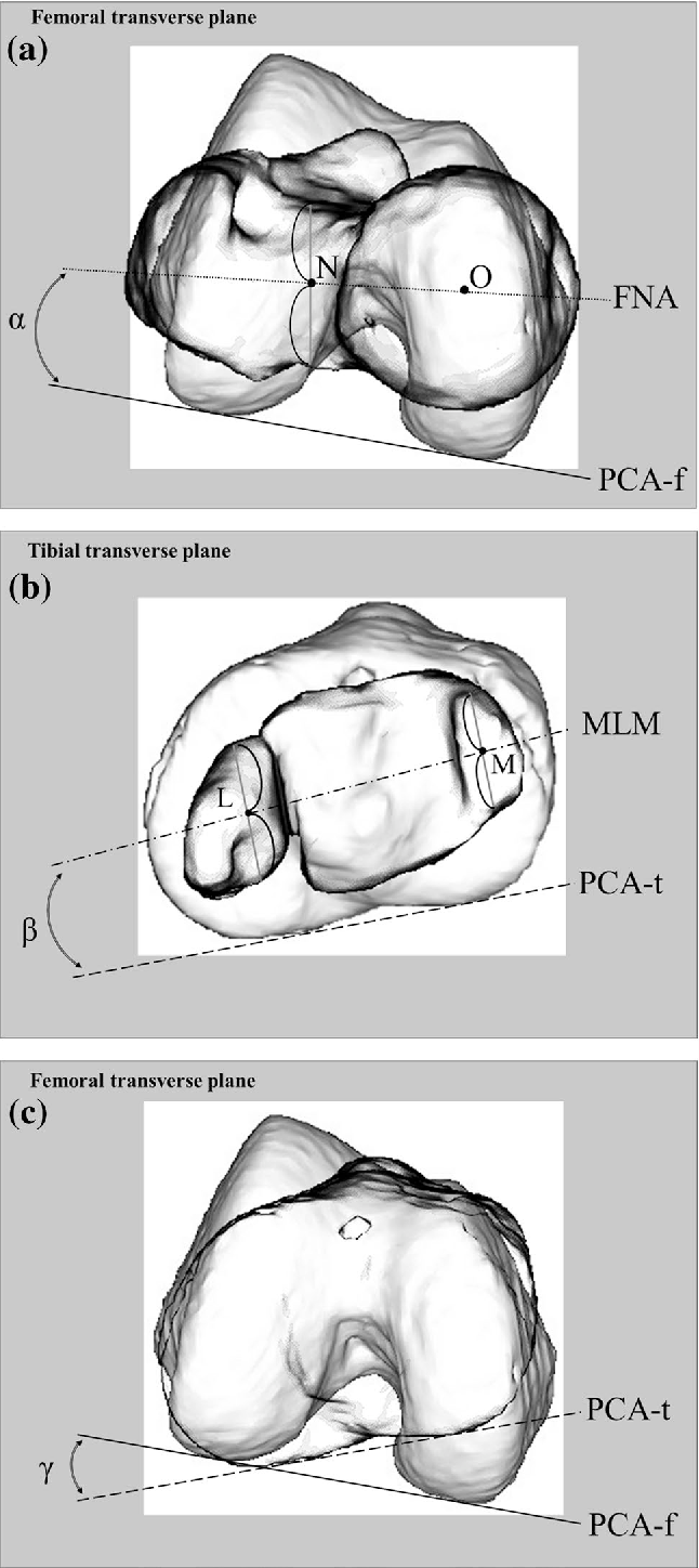 alignment in the transverse plane but not sagittal or coronal plane