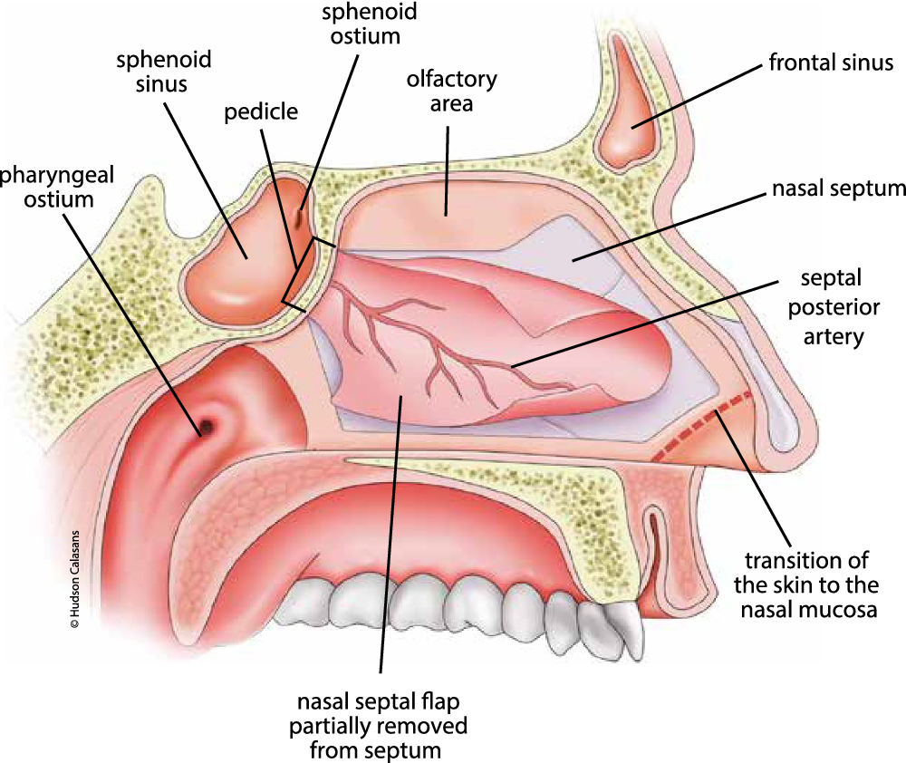 Lateral sphenoid sinus recess cerebrospinal fluid leak: a case ...