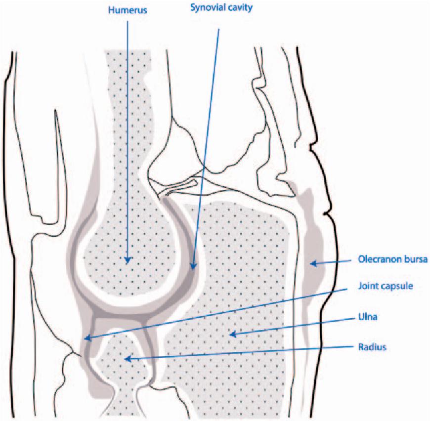 Figure 1 from Olecranon bursitis: a systematic overview. - Semantic ...
