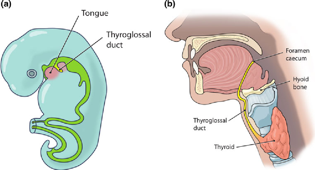Thyroglossal duct cysts: anatomy, embryology and treatment ...