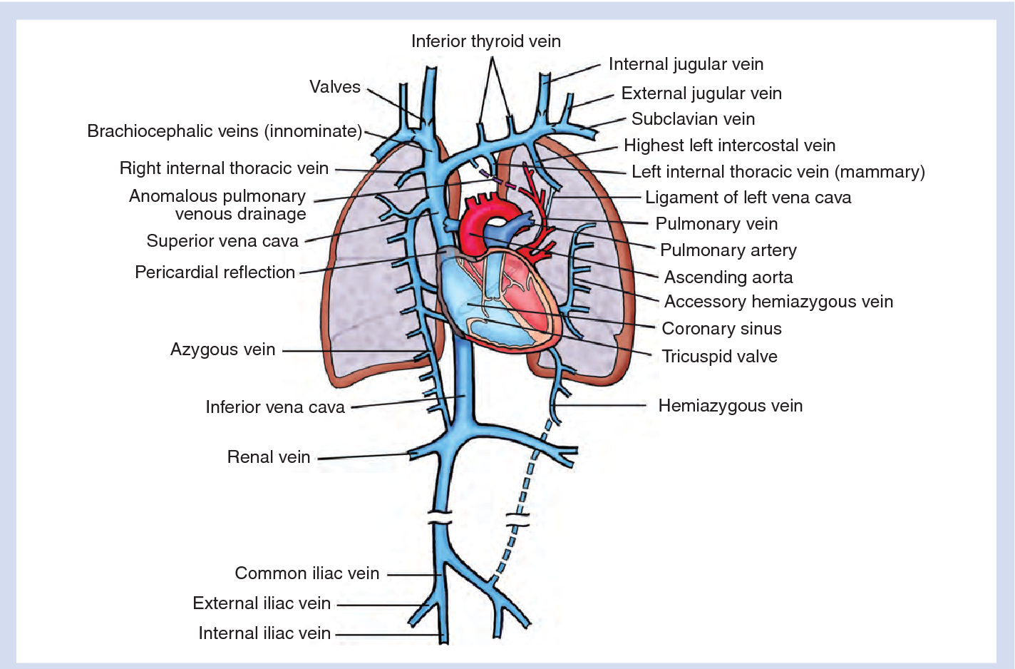 Misplaced central venous catheters: applied anatomy and practical ...