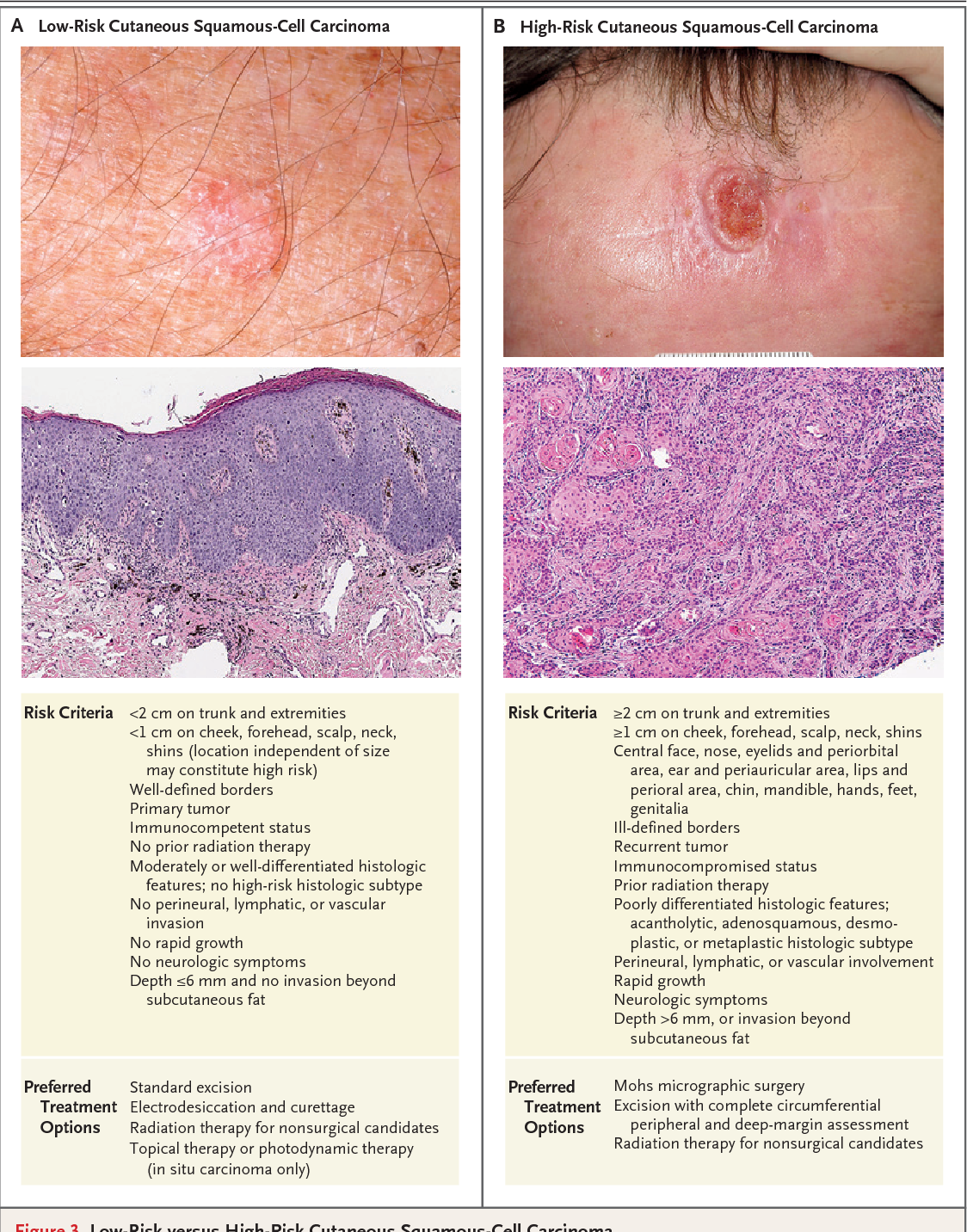 figure 3 from update on keratinocyte carcinomas. - semantic scholar