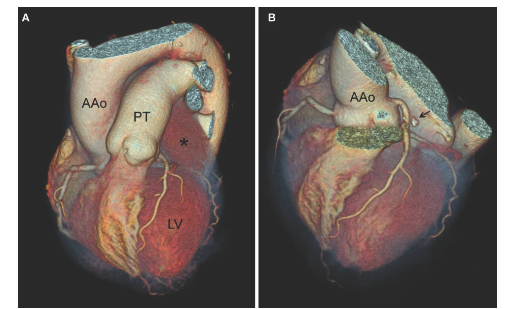 Giant Intrapericardial Myxoma Adjacent To The Left Main Coronary
