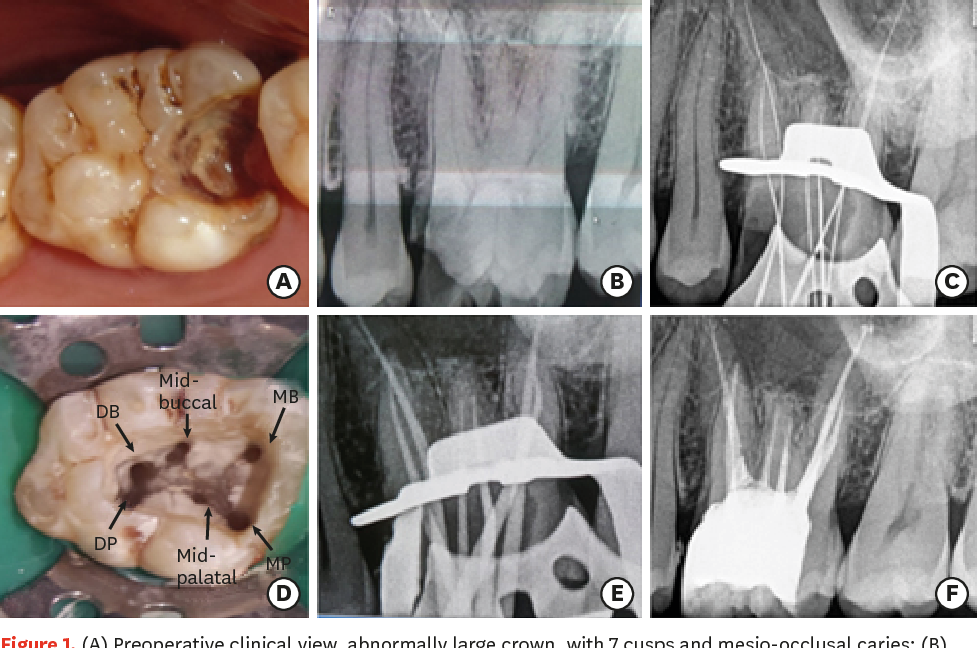 Management Of A Permanent Maxillary First Molar With Unusual Crown