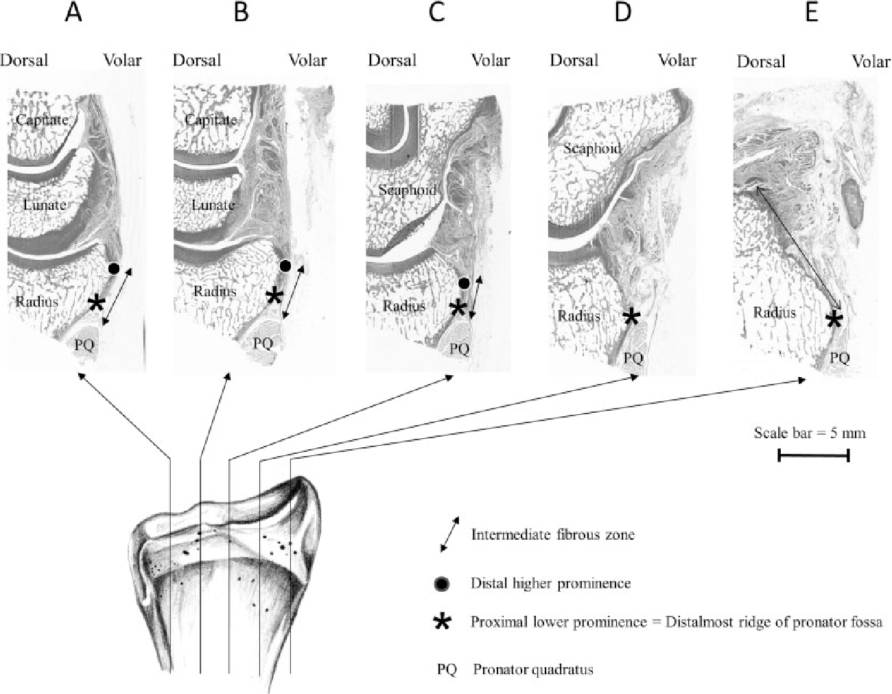 Volar Distal Radius Anatomy Applied to the Treatment of Distal ...